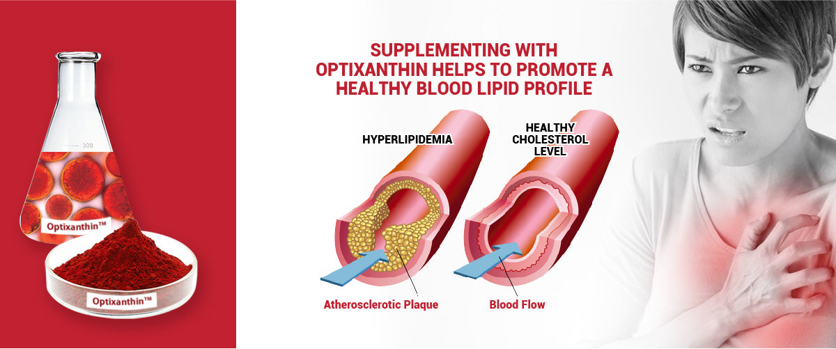 Optixanthin Astaxanthin helps to promote a healthy blood lipid profile
