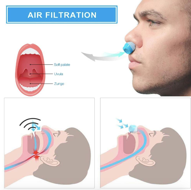 Silicone Anti-Snoring Device