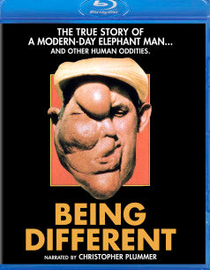 Being Different (blu-ray)