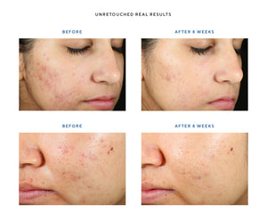 InvisiScar Resurfacing Treatment - The Perfect Products