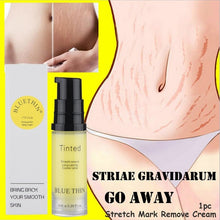 Load image into Gallery viewer, Skin care Pregnancy Stretch Mark Remove Cream with Vitamin E