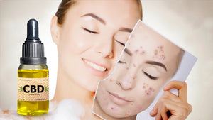 What are the Benefits of Using CBD Products for Acne Treatment?