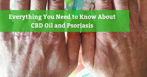 CBD for Psoriasis: Does it really work?