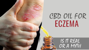 CBD for Eczema - Everything You Need to Learn About