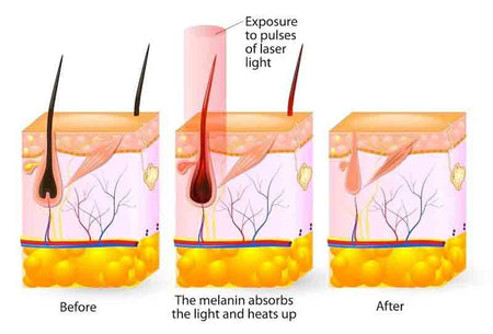 How does IPL work?