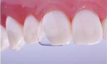 Load image into Gallery viewer, Directa, CoForm Celluloid Crowns for Class IV
