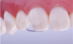 Directa, CoForm Celluloid Crowns for Class IV