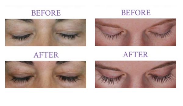 LILASH® PURIFIED EYELASH SERUM