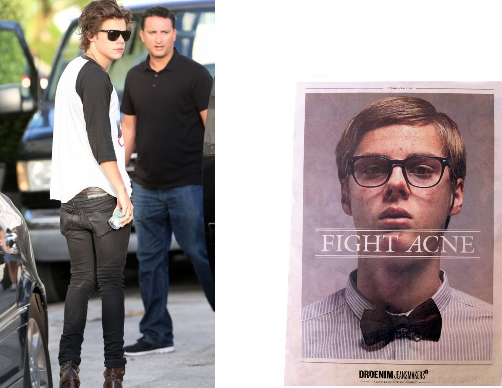 Harry+Acne