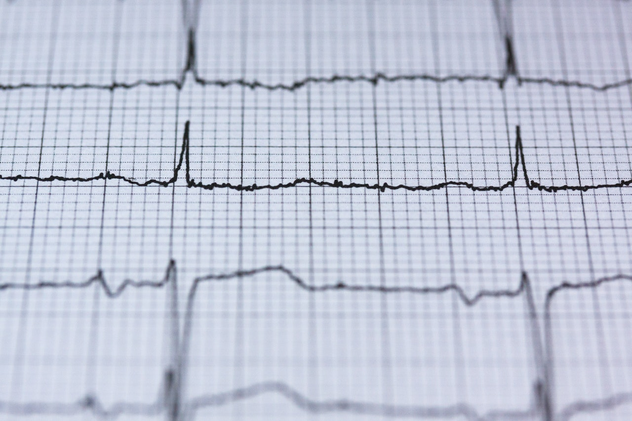 A Near Miss and an Important Lesson Learned - Heart Attack