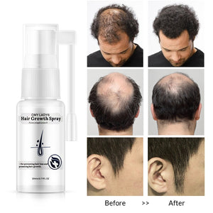 Natural Anti-Hair Loss & Hair Regeneration Spray