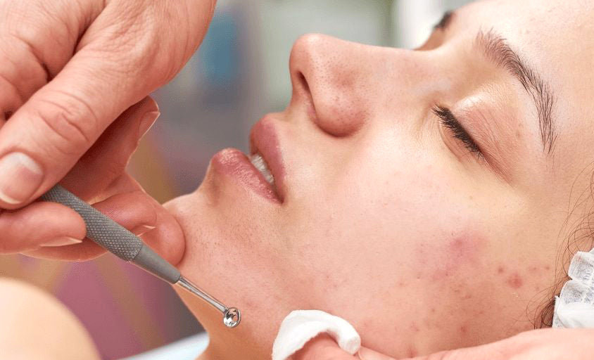 Combination Treatment for Acne
