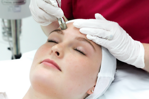 Ultimate Microdermabrasion with Jessners Peel