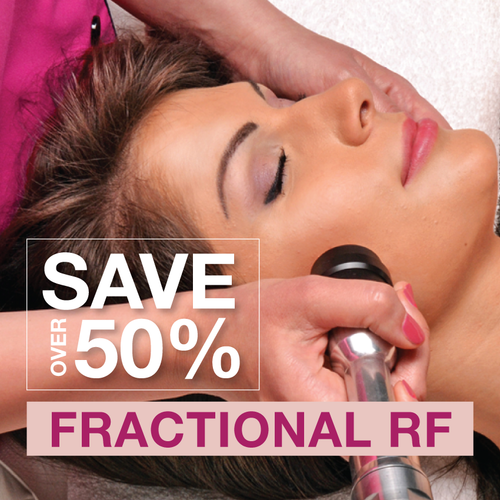 SALE! RF - Fractional Radio Frequency [Full Face + Neck OR Décolletage]