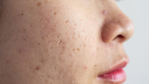how to cure hyperpigmentation