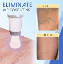 Load image into Gallery viewer, Blue Light Therapy Pen for Varicose Veins - ZZSales
