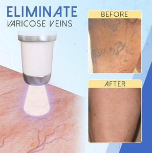 Blue Light Therapy Pen for Varicose Veins - ZZSales