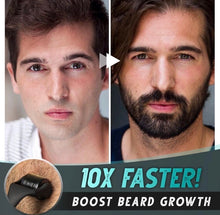 Load image into Gallery viewer, Beard Growth Roller Set - ZZSales