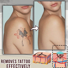 Load image into Gallery viewer, Tattoo Removal Cream - zzsales