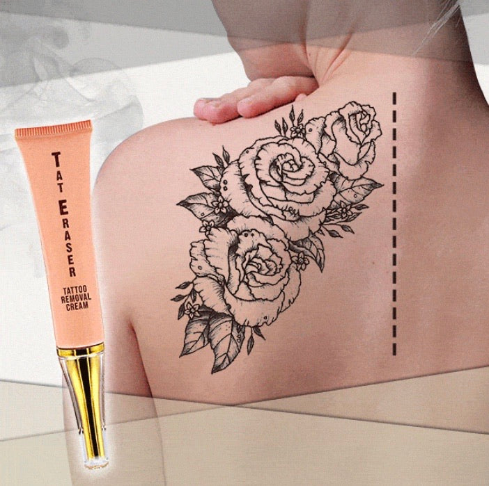 Tattoo Removal Cream - zzsales