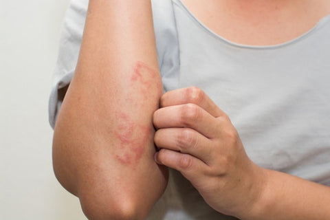 how to manage winter psoriasis