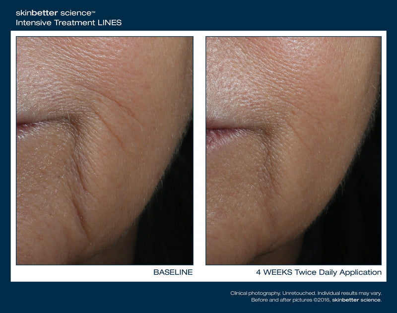 Skinbetter Science Interfuse Treatment Cream Lines