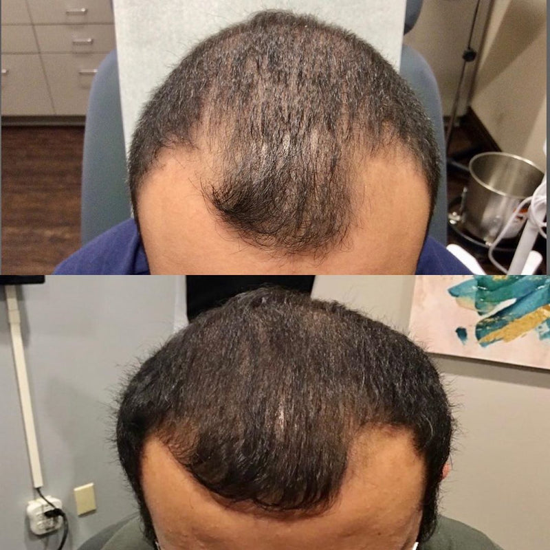 PRP Hair Restoration Package