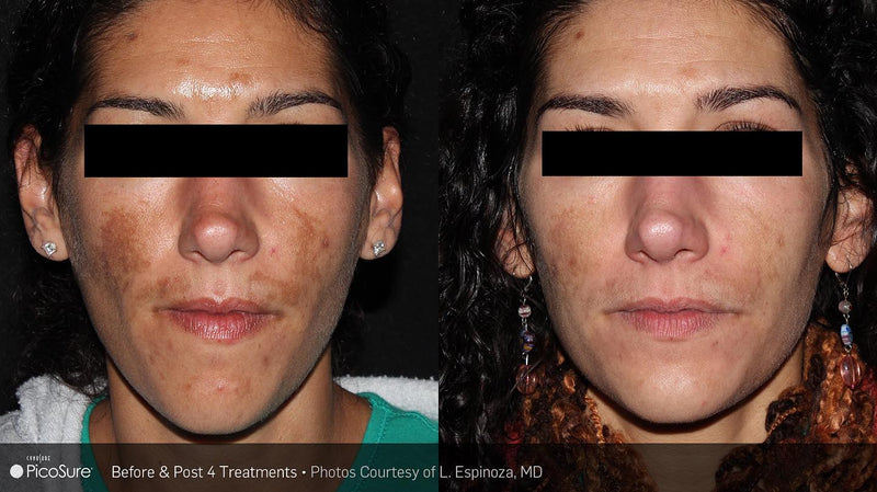 PicoSure Revitalization, Pigment & Tattoo Removal