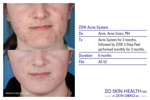 ZO Acne Prevention + Treatment Program
