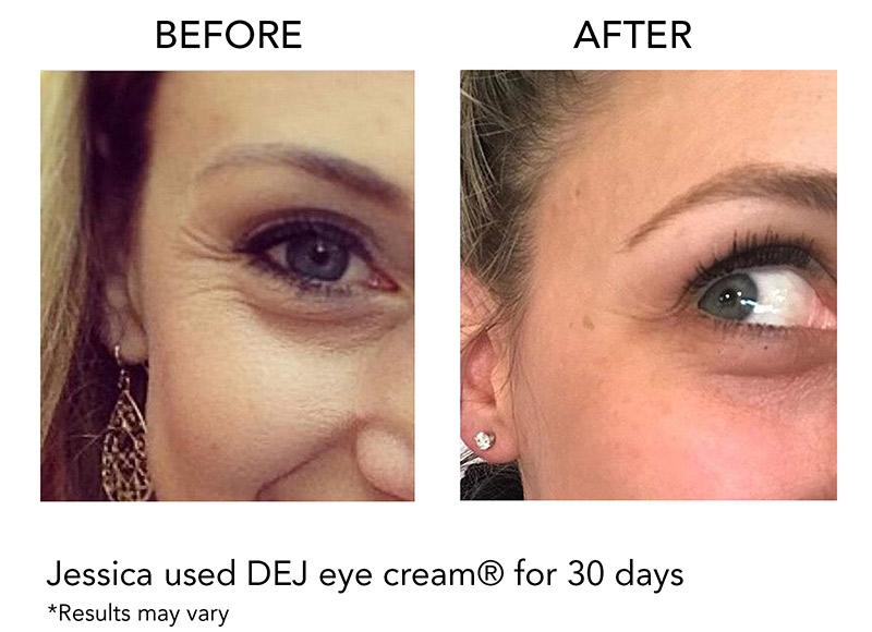 Revision DEJ Eye Cream