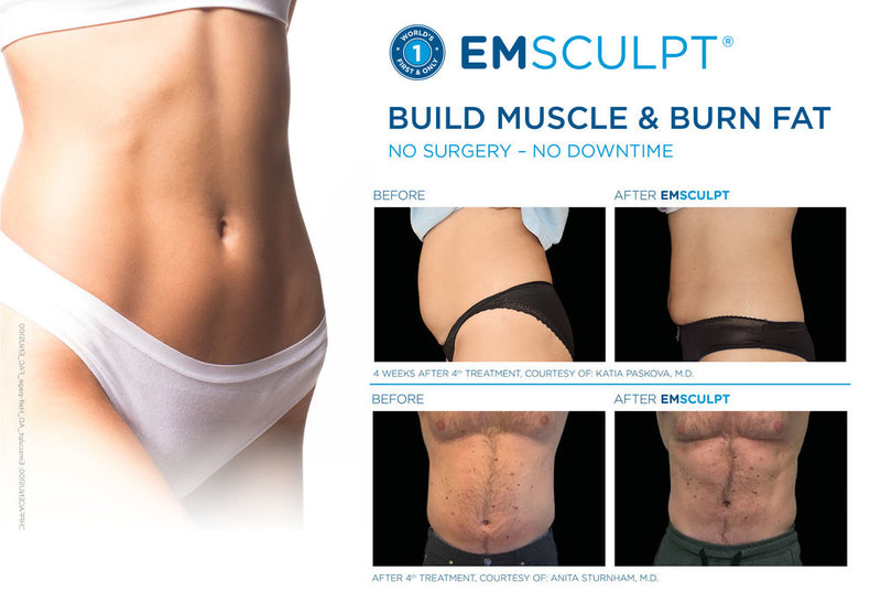 Emsculpt Package