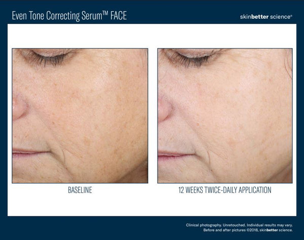 Skinbetter Science Even Tone Correcting Serum