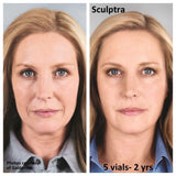 Sculptra Package