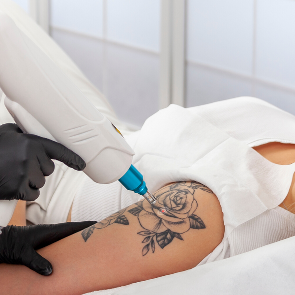 Laser Tattoo Removal Training