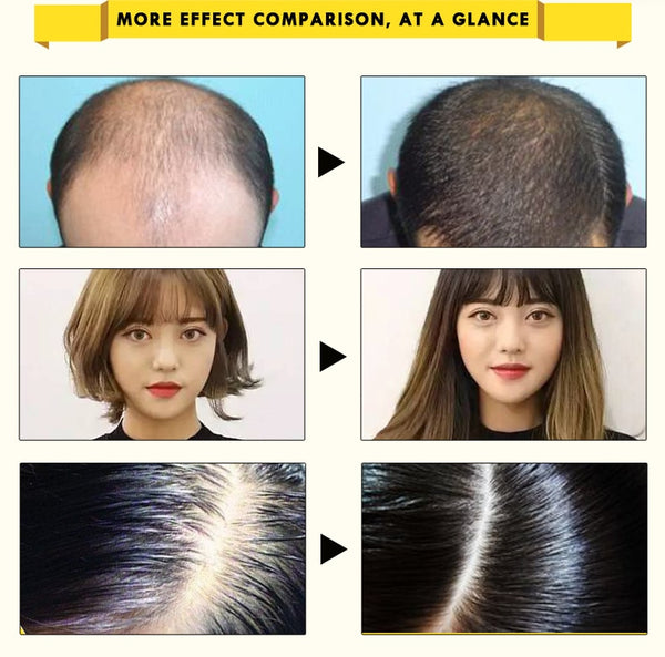 Ginseng Fast Restoration Hair Growth