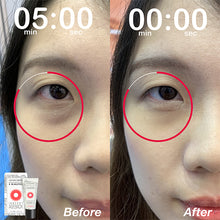 VITAYES Instant Ageback Facelift - Instantly reduce the appearance of under-eye bags