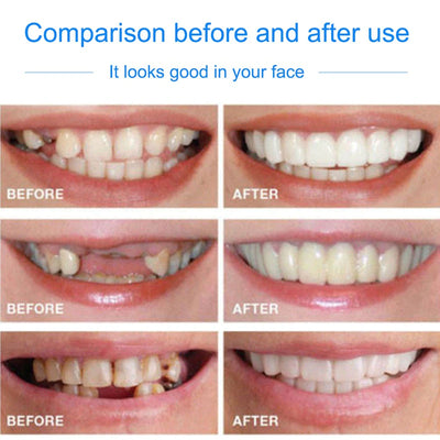 Snap On Veneers