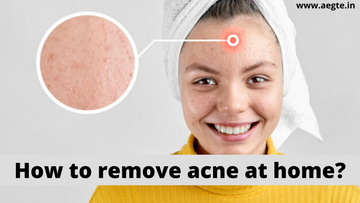 How to remove acne at home?
