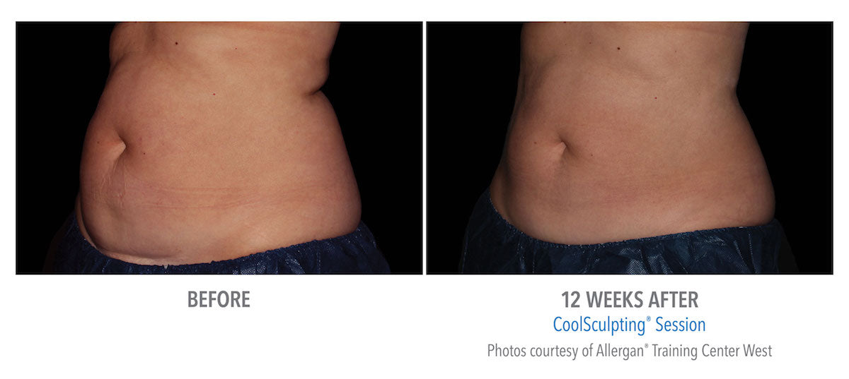 Before & After CoolSculpting Sessions