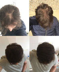 Before and After pictures of TenT Nutrition Biotin