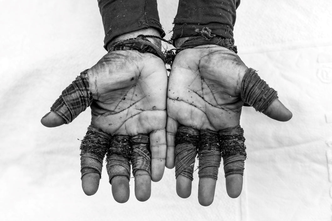 Manu Brabo_Hand of a coca field worker in Tumanco