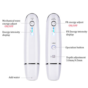 "Mini V-MAX ""RADAR V-LINE"" ULTRASONIC HIFU + RF  Face Lifting Device"