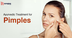 Home Remedies & Ayurvedic Treatment for Pimples (Acne Vulgaris)