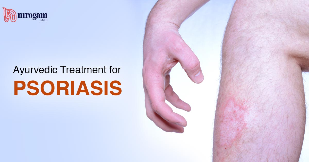 Home Remedies & Ayurvedic Treatment for Psoriasis