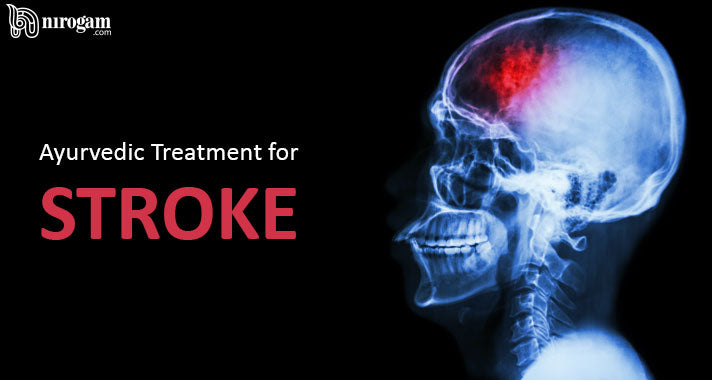 Ayurvedic Treatment for Stroke