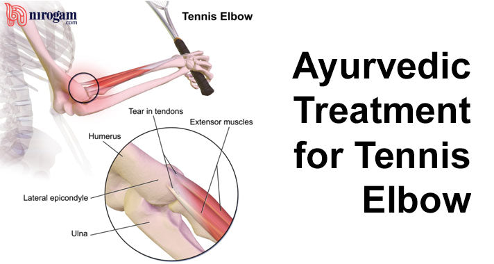 Home Remedies and Ayurvedic Treatment for Tennis Elbow