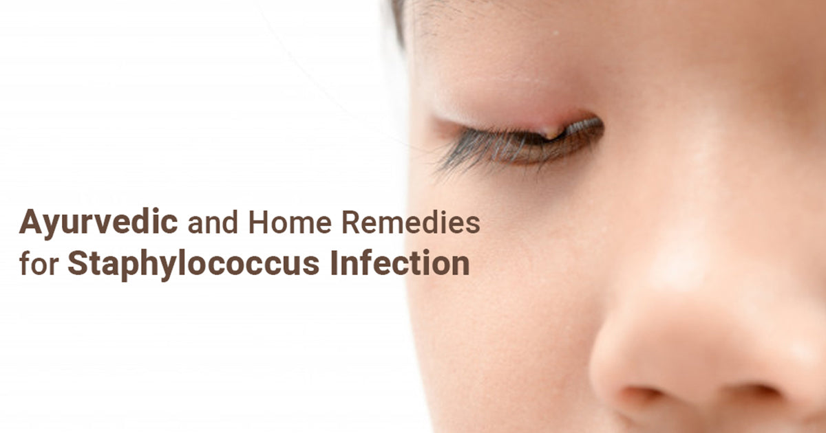 Ayurvedic and Home Remedies for Staphylococcus Infection