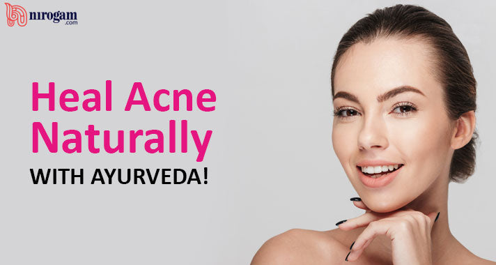 Heal Acne Naturally with Ayurveda!
