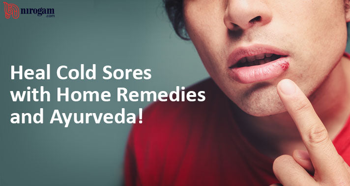 How to Heal Cold Sores with Home Remedies and Ayurveda!