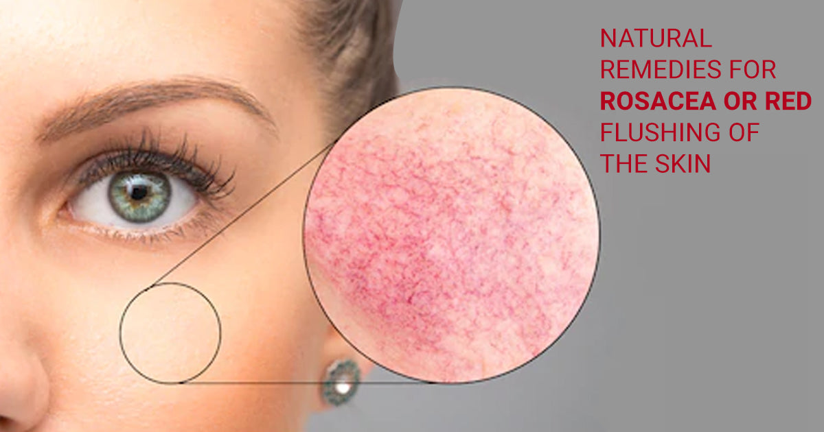 Natural Remedies For Rosacea or Red Flushing of the Skin